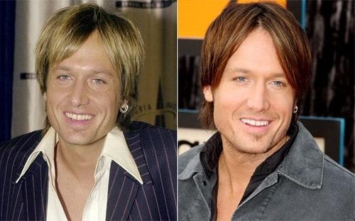 Celebrity Teeth Makeovers List